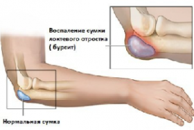 Бурсит лечение аюрведа