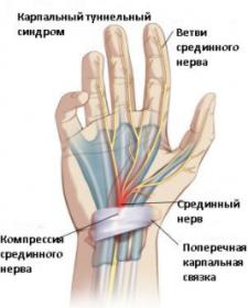 Синдром запястного канала лечение Аюрведа